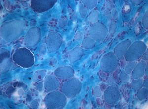tricromica di gomori